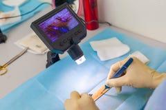 Доктор под микроскопом рассчитывает заново луковицы волоса Обработка плешивости Трансплантат волос Хирургический метод стоковое фото rf