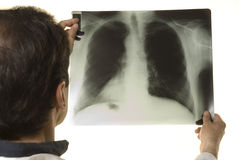 доктор смотря луч x Стоковое фото RF
