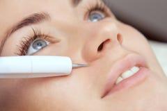 Доктор-cosmetologist делает обработку процедуры Couperose лицевой кожи красивого, молодой женщины стоковое фото