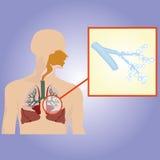 Дыхательная система Увеличенные бронхи Стоковая Фотография