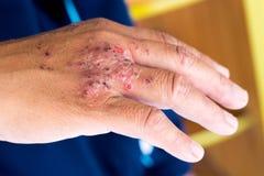 дерматит Стоковое Изображение
