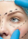 Женская сторона перед деятельностью пластической хирургии Стоковое Изображение