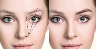 Женская сторона перед и после коррекцией бровей Стоковые Изображения