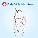 Женские проблемные участки жировых отложений Стоковые Фотографии RF