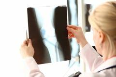 Женское удерживание radiolog в рентгеновском снимке рук стоковая фотография rf