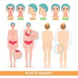 Женщина вектора пластической хирургии терпеливая перед facelifting хирургической операции или лицевой анти- подъемом вызревания х Стоковые Изображения RF