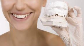Женщина держа образец зубов стоковые фотографии rf