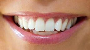женщина зубов Стоковое Фото