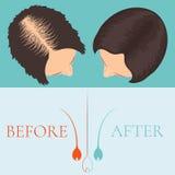 Женщина перед и после обработкой волос Стоковое фото RF