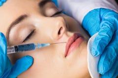 Женщина получая впрыску botox на ее губах Стоковое Изображение RF