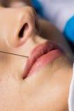 Женщина получая впрыску botox на ее губах Стоковое Изображение
