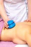 Женщина получая массаж вакуума курорта придавая форму чашки Стоковое фото RF