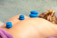 Женщина получая массаж вакуума курорта придавая форму чашки Стоковые Изображения