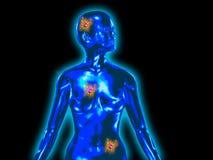 женщина рака тела Стоковое фото RF