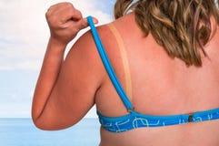 Женщина с красным sunburned плечом - концепцией загара стоковые фотографии rf