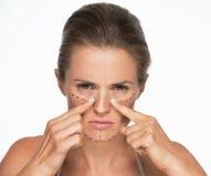 Женщина с метками пластической хирургии на стороне указывая на нос Стоковые Фотографии RF