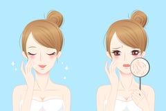 Женщина с проблемой skincare Стоковые Фото