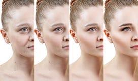 Женщина с участком подмолаживания кожи перед и после обработкой стоковая фотография