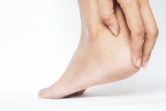 Женщина треснула пятки с белой предпосылкой, ногой здоровой Стоковые Изображения RF