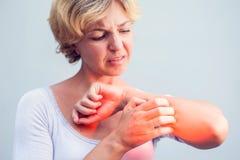 Женщина царапая зуд на белой предпосылке Чувствительная кожа, f стоковое фото rf