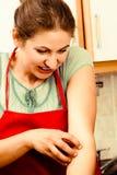 Женщина царапая зудящую руку аллергически стоковое фото rf