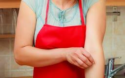 Женщина царапая зудящую руку аллергически стоковое изображение rf