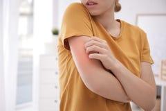 Женщина царапая руку внутри помещения, крупный план Симптомы аллергии стоковые фото