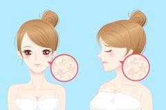 Женщина шаржа с кожей сухой Стоковые Фото