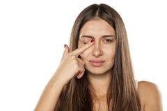 Женщины с зудящим глазом стоковые фотографии rf
