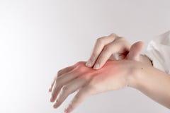 Жесткая рука, палец отжала на руке для того чтобы вылечить на боли изолированный на белой предпосылке Стоковая Фотография