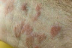 Заболевание кожи на дерматите рук стоковое изображение