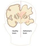 Заболевание Alzheimer иллюстрация вектора