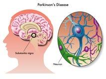 Заболевание Parkinson иллюстрация штока