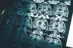 Заболевание ` s Alzheimer на MRI бесплатная иллюстрация