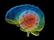 Заболевания мозга вырожденческие, Parkinson, синапсы, нейроны, ` s Alzheimer Стоковые Изображения