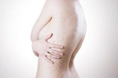 Забота тела, кожа слезая назад Стоковые Фото