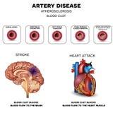 Заболевание артерии, атеросклероз иллюстрация штока