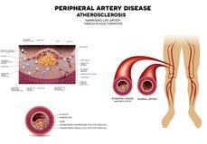 Заболевание артерии ноги, атеросклероз иллюстрация штока