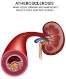 Заболевание артерии почки иллюстрация штока