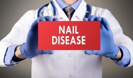 Заболевание ногтя стоковое фото