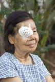 Заволакивание предохранительного щитка для глаз пользы пожилых людей после хирургии катаракты Стоковые Фото