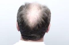 Задняя часть мужской лысой головы Концепция плешивости стоковые фотографии rf
