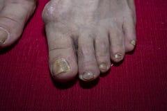 Закройте вверх больных ногтей пешком Стоковые Фотографии RF