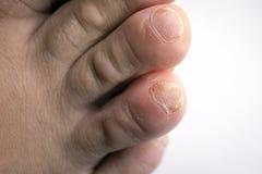Закройте вверх инфекции ногтя грибной на пальце пальца ноги стоковая фотография