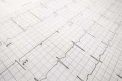Закройте вверх по испытанию сердцебиения ekg Стоковые Фотографии RF