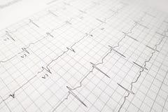 Закройте вверх по испытанию сердцебиения ekg Стоковое Фото