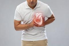Закройте вверх человека имея сердечный приступ или сердечную боль стоковое фото rf