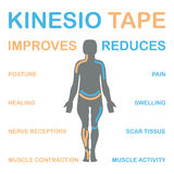 Запись на ленту Kinesiology улучшает сужение мышцы стоковые изображения