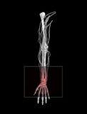 запястье руки тоннеля боли carpal Стоковая Фотография