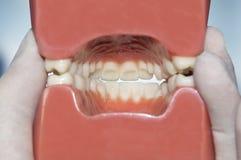 Задний взгляд зубоврачебной модели Стоковое Изображение RF